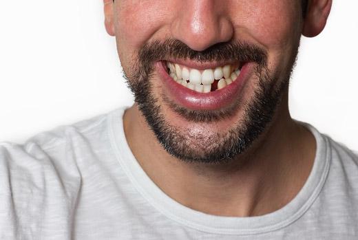 Dental<br /> Implants
