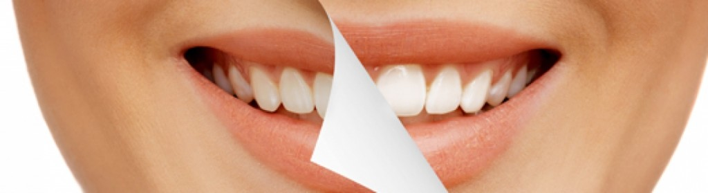 smile makeover procedures