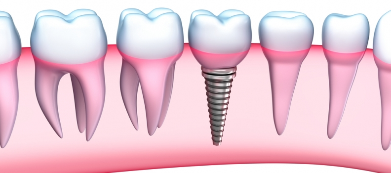 Benefits of Dental Implants