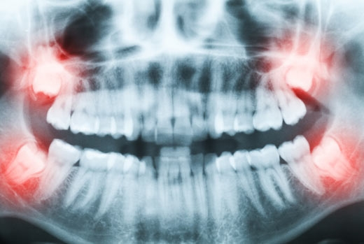 Wisdom Tooth Removal in Vancouver, BC